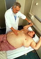 Obesity examination. Hospital doctor examining an obese man lying on a bed in a hospital ward. A person is obese when their body weight is at least 20...