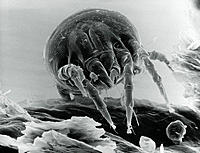 Dust mite. Scanning electron micrograph of a dust mite (Dermatophagoides pteronyssinus) on a flake of dandruff. Dust mites are tiny, eight-legged rela...