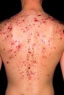 Acne vulgaris. View of the back of a 18 year old man with the skin disorder acne vulgaris. Acne is a general term describing skin spots formed when se...