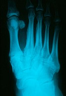 Osteoarthritis. X-ray of the foot of a 57-year-old woman with osteoarthritis. The metatarsals, the long bones which join to the toes, are in the upper...