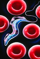 Sleeping sickness. Artwork of a trypanosome (Trypanosoma brucei) moving past human red blood cells in the blood. This protozoan is the cause of sleepi...