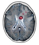 ´Secondary brain cancers.  Coloured axial  computed tomography  (CT)  scan through the head of a woman with secondary brain cancers (red).  The front ...