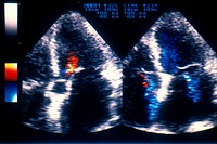 CONGESTIVE HEART FAILURE<BR>Echocardiogram (ultrasound) of bi-atrial dilatation with aortic insufficiencies of the tricuspid and mitral valves.