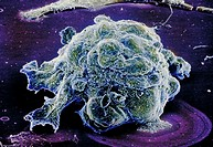 Human breast cancer cell. Scanning electron micrograph (SEM) of cancer cell. Breast cancer is a malignant tumor that has developed from a cell on the ...