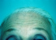 Senior woman, close-up of forehead