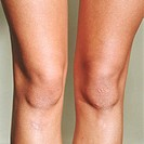 Female knee