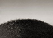 Black and white close up of the top of an african-american/afro-caribbean mans bald head (thumbnail)