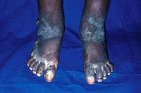 Kaposi´s sarcoma tumours. Image 2 of 2. Feet of an AIDS  patient after nine months of chemotherapy to treat Kaposi´s sarcomas.   AIDS  (acquired  immu...