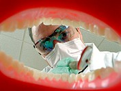 View of Dentist From Inside the Mouth