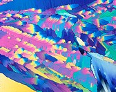 Phenylalanine. Polarised light micrograph of crystals of phenylalanine. This is one of the essential amino acids, those which the body cannot synthesi...