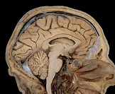 Section through human head showing the brain. The largest part of the brain is the forebrain (top, brown) which mainly comprises the folded cerebrum w...