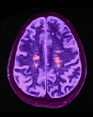 MRI (magnetic resonance imaging) of brain showing multiple sclerosis.