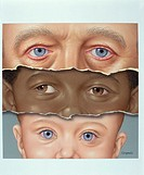 Eye problems: Blepharitis, strabismus and conjunctivitis on an adult (top), child (middle) and infant (bottom) respectively.