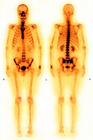 WHOLE BODY SCINTISCANNER<BR>Male skeleton. Gamma scan of entire body. Frontal view at left, from back at right.
