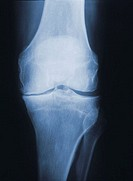 X-ray of arthritic knee