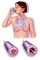 ASTHMA, DRAWING<BR>Asthma.<BR>Illustration of a woman using an inhaler to calm an asthma attack. The two close-ups at the bottom show the state of the...