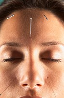 Woman with acupuncture needles in face