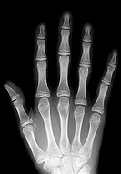 Frontal x-ray of a child´s hand, showing normal bone anatomy with no fractures, dislocations or areas of bone destruction. Growth plates, which add le...