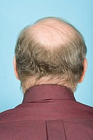 Rear view of balding man