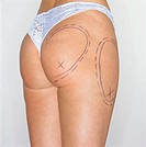 mid section view of a woman´s buttocks marked for plastic surgery