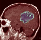 BRAIN CARDIA, MRI<BR>Glioblastoma. Absence of edema, generalized epileptic seizures due to disseminated cells which have invaded the cortical region. ...