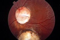 COLOBOMA OF CHOROID<BR>Papillary and chorioretinal coloboma.