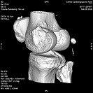 <BR> <BR>Gonarthrosis. Frontal view. 3D scanner.  This image is part of a series of 11 scanner pictures taken in the framework of the gonarthrosis che...