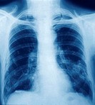 Pleural calcification  Coloured X-ray of the chest of a patient with pleural calcifications  The pleura are the membranes that surround the lungs  The...