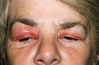 Swollen eyelids of a 58 year old woman  This is an allergic reaction with an unknown cause  Treatment is with anti-inflammatory drugs and anti- histam...