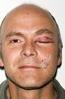 Bruised and swollen eyelid  43 year old man with a bruised and swollen eyelid and cuts to the face after playing rugby  For a close- up of the eye inj...