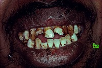 Closeup of man's dirty teeth