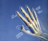 Illustration of common hand and finger fractures: avulsion fracture, tuft fracture, articular fracture, and shaft fracture