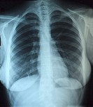 Normal chest x-ray, frontal view, of a 20 year old female who came to the emergency room with a cough The patient had a viral upper respiratory illnes...