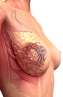 Breast cancer (thumbnail)