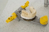 Close-up of dentures on a dental equipment
