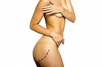 Nude woman with plastic surgery markings on body, covering breasts, cropped view