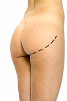 Nude woman with plastic surgery markings on buttocks, cropped view