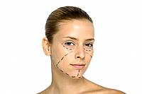 Young woman with plastic surgery markings on face, looking at camera (thumbnail)