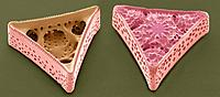 Diatoms. Coloured scanning electron micrograph SEM of Triceratium morlandii diatoms. Diatoms are single_celled photosynthetic algae, of which there ar...