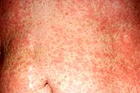 Urticaria rash red patches on a 58_year_old woman´s abdomen. Urticaria also called hives is a response of the body´s immune system, usually to an alle...
