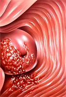 Cervical cancer. Computer artwork of malignant cancerous cells on the cervix neck of the womb, centre left and vaginal wall. Symptoms include bleeding...