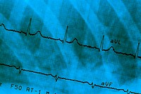 Close_up of an electrocardiogram report