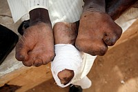 The hands and foot of a man afflicted with Leprosy.