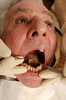 A dentist examines the condition of an elderly man´s teeth using a dental pick and angled mirror.