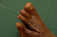 The left foot of a patient who has had to endure amputation of their fourth toe in order to save the rest of her foot from an infection. An example of...