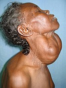 Patient has a multinodular goitre, a swelling in the neck just below the Adams apple larynx due to an enlarged thyroid gland.