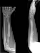 Healing arm bone fracture, X_rays. This is a fracture of the radius, one of the two bones of the lower arm, seen from two different angles. The radius...