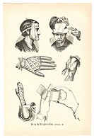 A page of illustrations of bandaged injuries from a vintage book