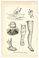 Illustrations of bandaged injuries from a vintage medical book