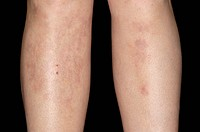 Nodular vasculitis rash red patches on a 38 year old womans´s legs. Nodular vasculitis is an inflammation of fatty tissues beneath the skin´s surface ...